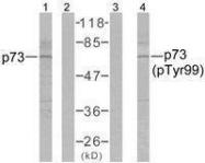 GTX50428 - Tumor protein p73 (TP73)