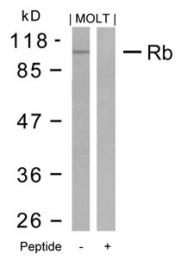 GTX50458 - Retinoblastoma-associated protein / RB1