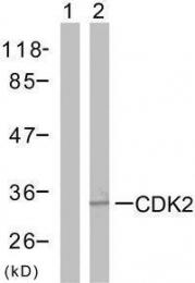 GTX50461 - CDK2