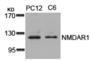 GTX50477 - NMDA Receptor 1