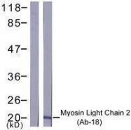 GTX50495 - MYL12A