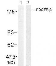 GTX50546 - CD140b / PDGFRB