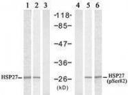 GTX50563 - HSPB1 / HSP27