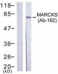 GTX50578 - MARCKS