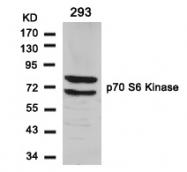 GTX50582 - RPS6KB1 / STK14A