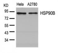 GTX50607 - HSP90AB1 / HSP90 beta