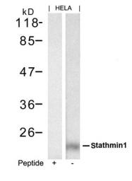 GTX50655 - Stathmin / STMN1