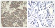GTX50657 - Tyrosine-protein kinase JAK2