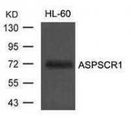 GTX50737 - ASPSCR1