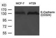 GTX50757 - CD324 / Cadherin-1