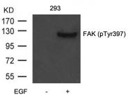 GTX50760 - FAK1 / PTK2