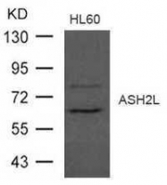 GTX50776 - ASH2L / ASH2L1
