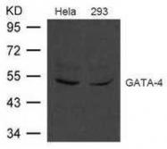 GTX50777 - GATA4