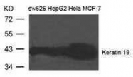 GTX50785 - Cytokeratin 19