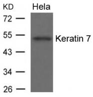 GTX50827 - Cytokeratin 7