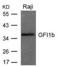GTX50844 - GFI1B