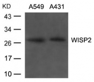 GTX50849 - WISP2