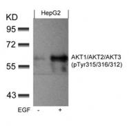 GTX50869 - AKT3 / PKB gamma