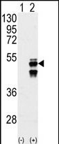 GTX50878 - Protein phosphatase 1F / PPM1F