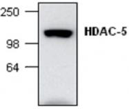 GTX59634 - HDAC5