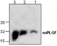 GTX59638 - Placenta growth factor / PGF