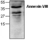 GTX59666 - Annexin A8 / ANXA8