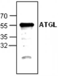 GTX59676 - PNPLA2 / ATGL