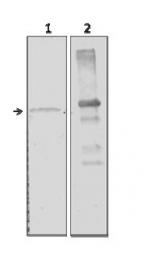 GTX59694 - Alpha-amylase 2A