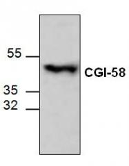 GTX59713 - ABHD5