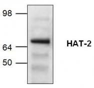 GTX59753 - MYST2