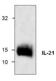 GTX59769 - Interleukin-12 beta / IL12B