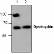 GTX59790 - Dystrophin / DMD