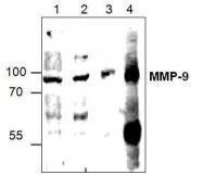 GTX59797 - MMP-9