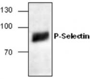 GTX59804 - CD62P / P-Selectin