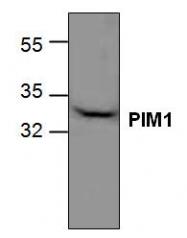 GTX59826 - PIM1