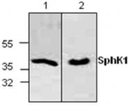 GTX59877 - Sphingosine kinase 1 (SPHK1)