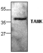 GTX59886 - TANK / ITRAF