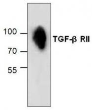 GTX59893 - TGFBR2