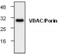 GTX59911 - VDAC1