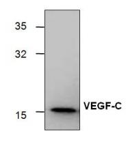 GTX59914 - VEGF-C / Flt4-L