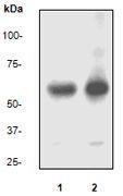 GTX61081 - Paxillin /  PXN