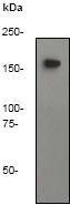 GTX61210 - CD45 / LCA
