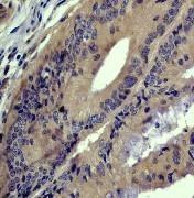 GTX61381 - Cytohesin 3