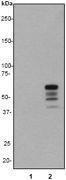 GTX61472 - Vimentin