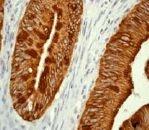 GTX61632 - Cytokeratin 20