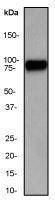GTX61636 - Heat shock factor 1 / HSF1