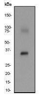 GTX61715 - 17-beta-HSD1 / HSD17B1