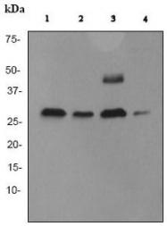 GTX62063 - Cathepsin D