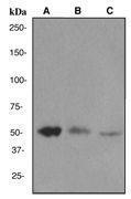 GTX62096 - Integrin-linked protein kinase