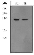 GTX62102 - Transducin beta chain 2 / GNB2
